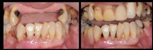 給假牙裝「扣子」 好用又比全口植牙更省錢