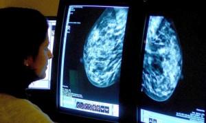 治乳癌新突破 2種藥雙管齊下 11天讓腫瘤縮小