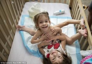 美國3腳連體女嬰分離手術成功 開心迎接新童年
