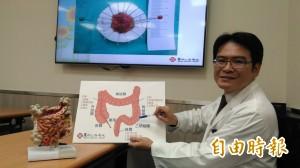 醫病》瘜肉癌病變機率高 早期大腸癌治療有利器