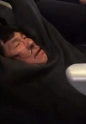 美聯航強拖醫生下機濺血 航警新爆:他自己撞的…