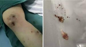 亞馬遜雨林遊玩被蟲咬 小腿傷口鑽出「蠅蛆」
