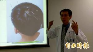 醫病》失智增加 柳奇醫:中醫針灸可改善