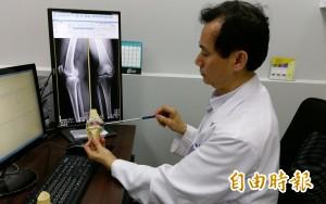 醫病》退化性關節炎吃葡萄糖胺 醫師:效果有限