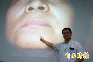 醫病》口腔癌不用切臉 達文西手臂手術重建外觀不留疤