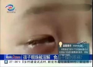 男童玩乾燥劑結果爆炸 右眼球被溶掉永久失明
