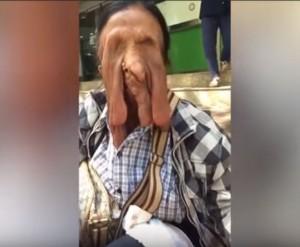 怕死所以不動手術  泰國老婦臉都「融化」了!