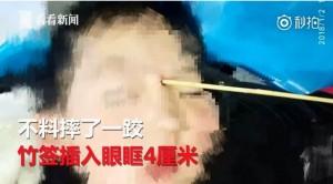 強國2歲童吃關東煮摔倒   竹籤插進眼眶4公分