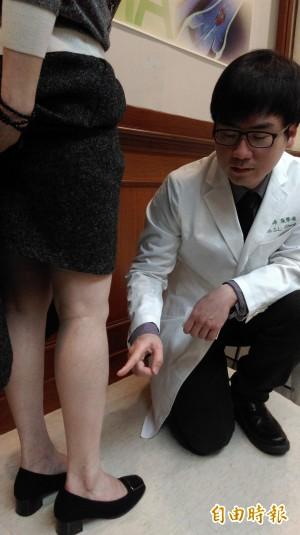 醫病》靜脈曲張別輕忽 長庚研究:栓塞、動脈疾病更高