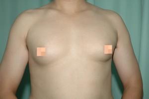 醫病》胸肌大? 可能是罹患「男性女乳症」