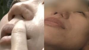 鼻孔變不見了!員工在自家醫院整鼻 術後險窒息告老闆