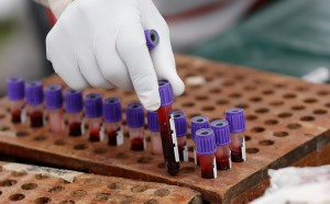 日本研究:血型O型者重傷 死亡率高逾其他血型者2倍
