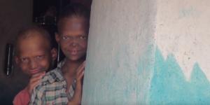 吸血鬼般的尖牙! 印度兄弟罹罕病被稱「鬼孩」遭霸凌