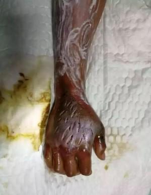 男子遭毒蛇攻擊擠血保命 右臂毒發成恐怖模樣