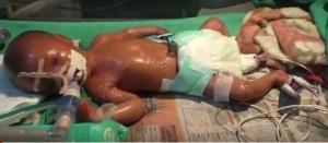 印度寶寶罹永久性罕病 皮膚如蠟像有光澤