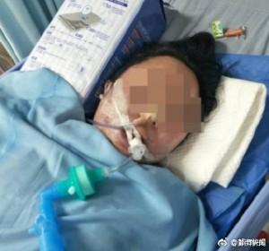 女子1天接受3項整形手術 陷昏迷搶救6天身亡