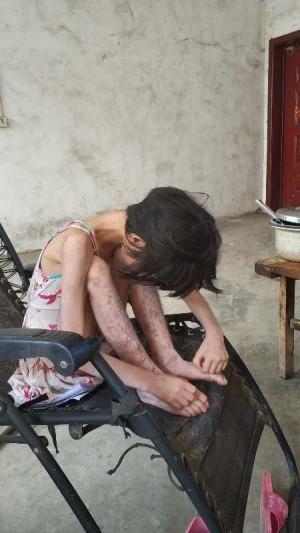 百萬分之一的罕病!13歲孝女為家計放棄治療