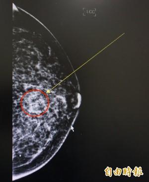 保險公司拒賠乳癌 竟因病情不夠嚴重