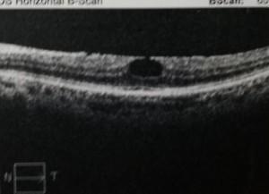 驚!正妹在陽光下滑手機 視網膜滑出一個大洞