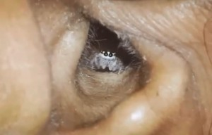 耳內疼痛發現有蜘蛛!超萌模樣網友驚呼:蠟筆小新