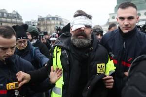 法國黃背心第11週 運動領袖遭警方打到右眼失明
