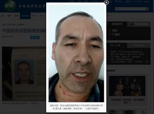 新疆商人出國尋求庇護 割頸堅拒中國政府引渡回國