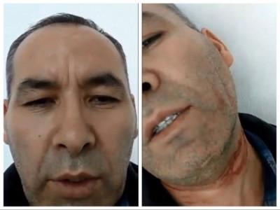 新疆割頸男恐遭遣返中國 家屬向聯合國求援