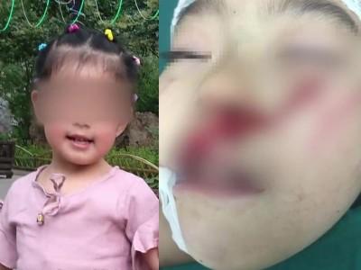 6歲童遭砍5刀毀容 每天問媽媽:為什麼要砍我?