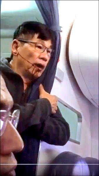 2年前遭聯航暴力濺血拖下機 華裔醫生首露面:「看到影片就哭」