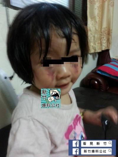 網友怒了!母和2歲女疑遭家暴 又回頭找施暴夫求復合