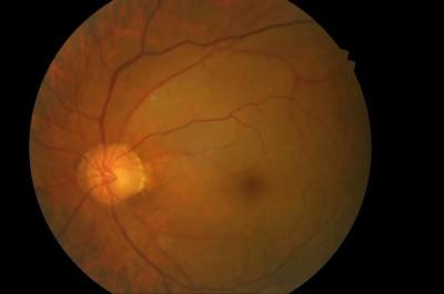 3高男眼中風 左眼視力剩2公分處見手指