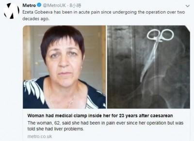 婦人23年腹痛疑肝臟問題 檢查後醫生糗大了