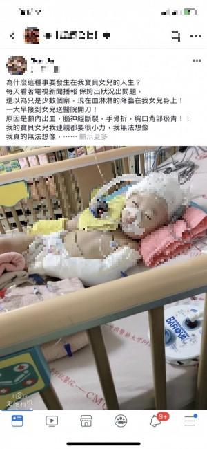 台中1歲女童疑遭保母虐待腦出血  嚴重恐終身癱瘓
