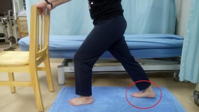 下床第一步像針刺腳底 你可能得了「足底筋膜炎」