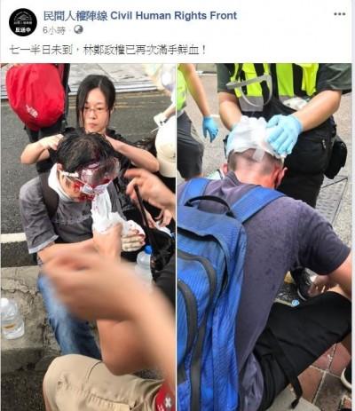 香港七一遊行民眾頭破血流 民陣批︰林鄭政權再次滿手鮮血
