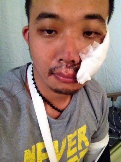 怎麼了?罷韓煎餅老闆 臉傷照PO網嚇壞支持者