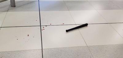 反送中》白衣人亂棍打記者、議員 今夜香港多人頭破血流