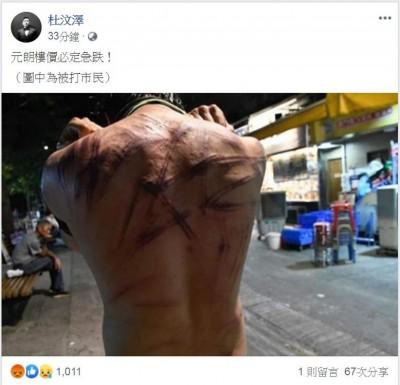 反送中》香港傳白衣暴力 杜汶澤PO照怒轟「警黑合作」