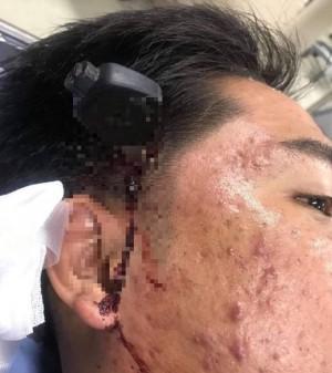 驚!泰國交通糾紛機車駕駛爆氣 車鑰匙猛插對方太陽穴