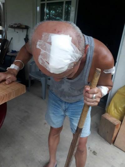 「台灣野人」首度傳出傷人!滿州居民遭木棍砸傷頭