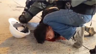 反送中》港警、黑衣人暴力壓制 港男臉壓地門牙斷求饒