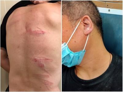 反送中》「光復上水」發起人遇襲 暴徒持藤條痛毆全身是傷