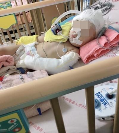保母摔女童致重傷害被訴 警察丈夫不起訴