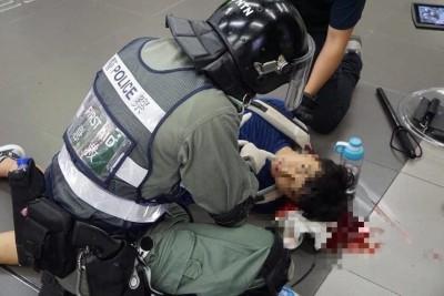 反送中》高中生遭7警圍毆爆頭倒地 港警:有叫他別跑