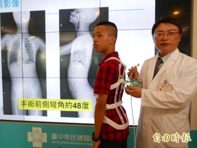 醫病》13歲少年脊椎側彎到48度 植20顆骨釘喬回來