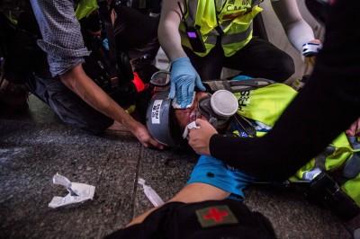 反送中》印尼女記者遭警射眼 律師:將告盧偉聰、開槍警