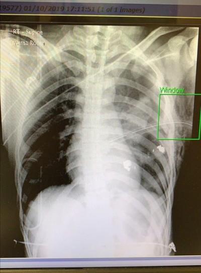 反送中》中五生左胸中槍致氣胸 子彈碎片距心臟僅3公分