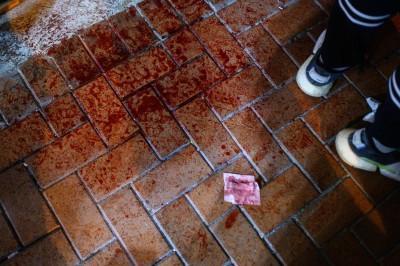 香港人反抗》27歲男傳被警打至腦出血 延遲送醫人未清醒