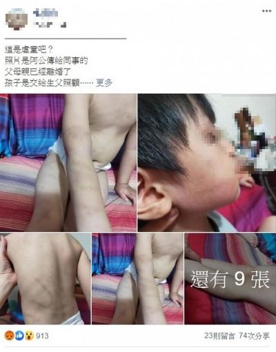 4歲孫被兒子帶到台北竟全身傷痕!住台中阿公超生氣衝去報警