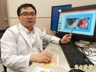 瘜肉險當良性腫瘤 進階內視鏡切除早期癌細胞